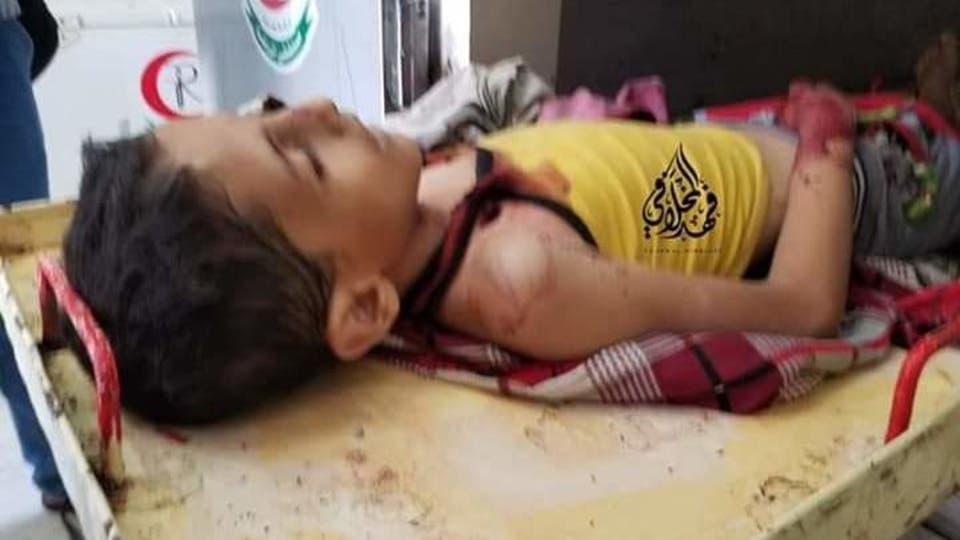 طفل يمني ضحية قناة الحوثيون - الحوثيون